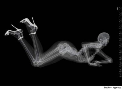 x-ray of prone woman on her elbows, with her tush and legs in the air