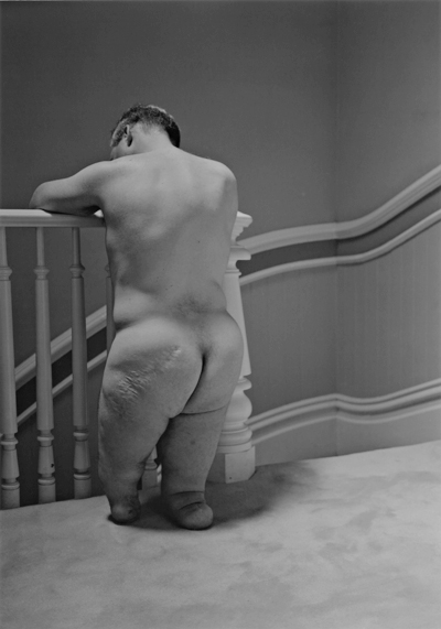 image of amputee (legs) looking elegant standing at an inside Victorian stair rail